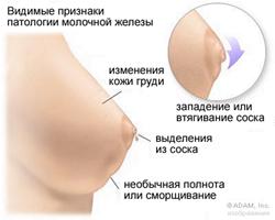 При мастопатии может втягивается сосок