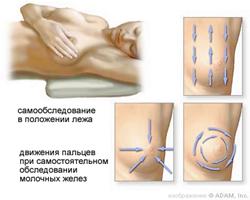 Схема обследования молочных желез